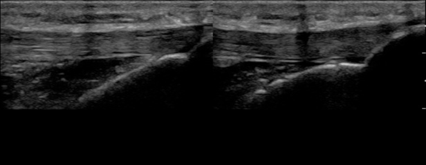 Figure 8 - Achilles tendon - normal split screen still.jpg
