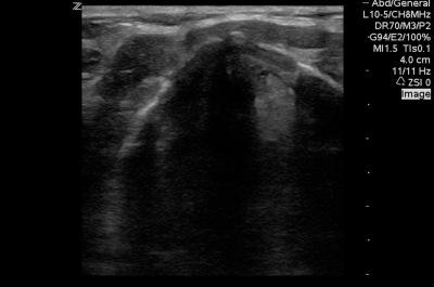 angioedema-case-supraglottic-edema-left-still-2
